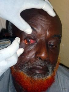Eye Clinic Habaswein May 2012